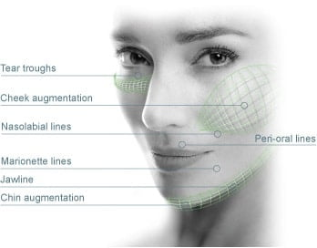 Areas that can be treated with dermal fillers