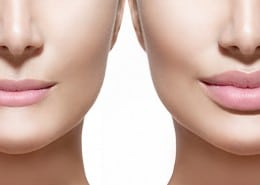Are lip fillers any good? blog by Austin Brewer