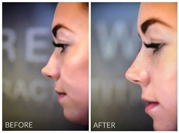 Non surgical nose job results with Austin Brewer