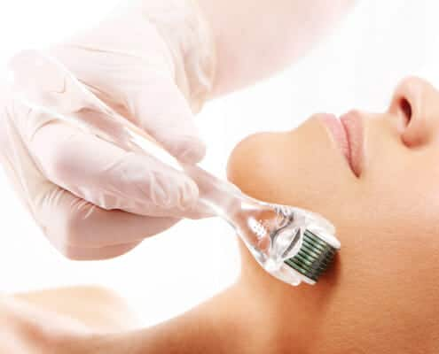 skin-needling-bournemouth
