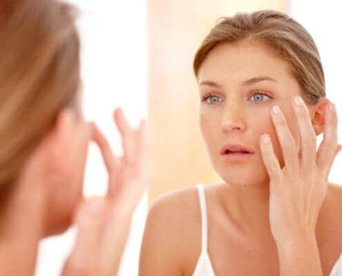 can-chemical-peels-remove-acne